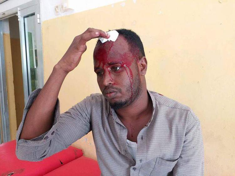 Somali journalist injured in Galkacyo town