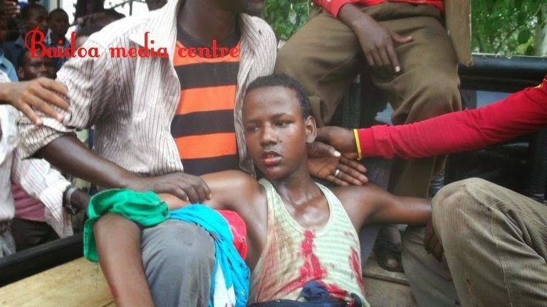 somaliastop killing somali young boys
