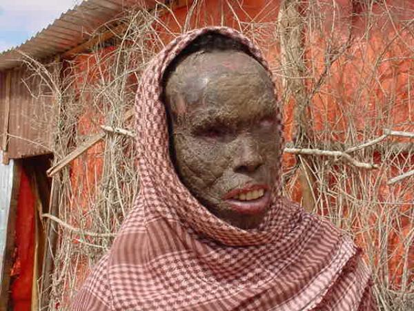 "Somalia Became ""Land of Poison"""